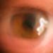 lens to eye