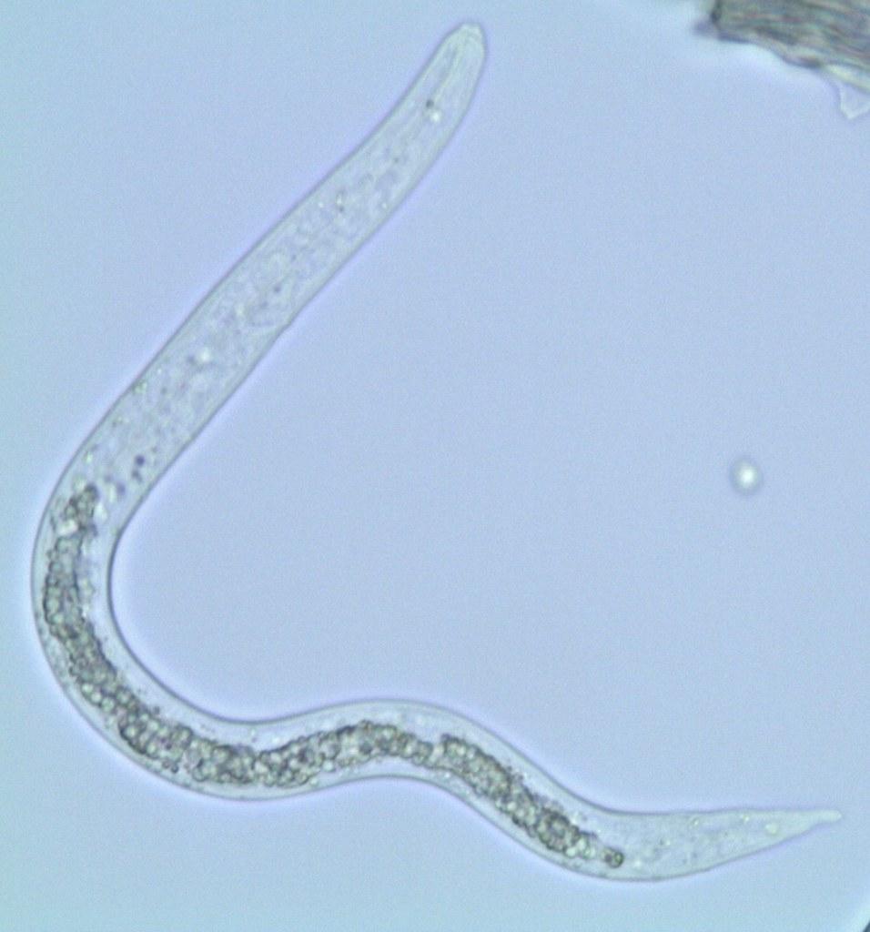Ascaris Larva (hatched On Slide)