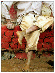Road Makers Feet | by Shashwat_Nagpal