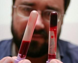 Obat Pengencer Darah Kental Di Apotik