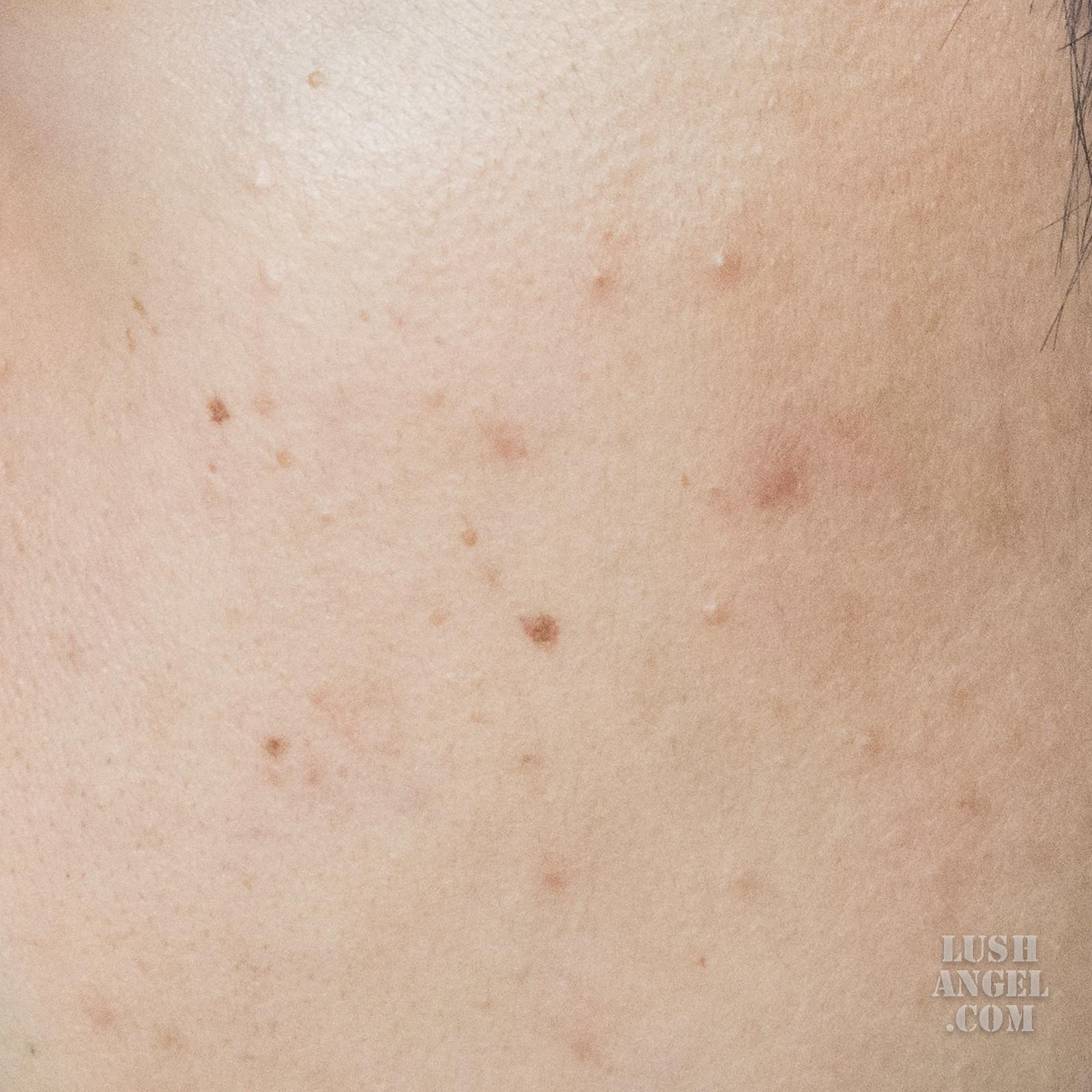 belo-essentials-acnepro-skincare