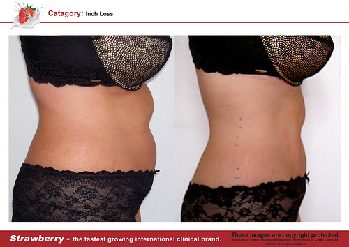 B4 & After female abdomen 11 lrg