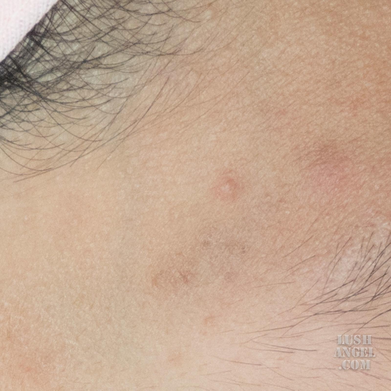 belo-acne-skincare