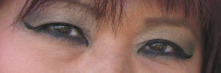 Retinal Surgery Chicago Kraff Eye Institute 312 444 11