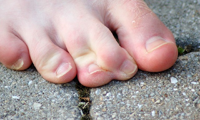 chad's webbed toes | chad has the coolest toes on the planet… | flickr, Skeleton