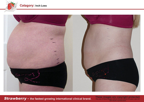 B4 & After female abdomen 10 lrg