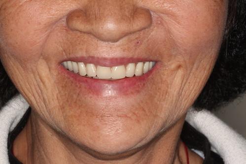黃經理牙醫診所All on 4植牙 助老人恢復好「食」力 (7)