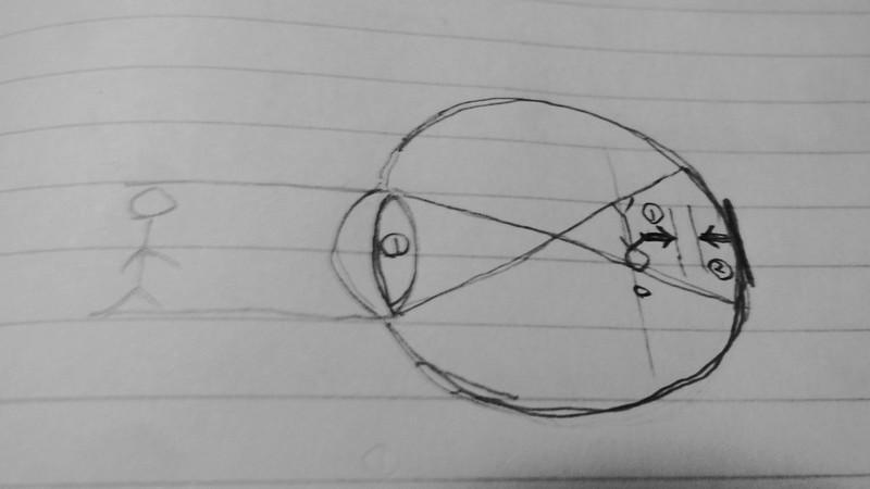 視力がなかなか回復しない本当の理由・・・ピントが網膜に合わないパターン(屈折性近視+軸性近視併発)ブログ記事用ネタ