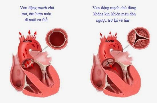 Hình ảnh động mạch chủ bình thường và động mạch chủ bị hở
