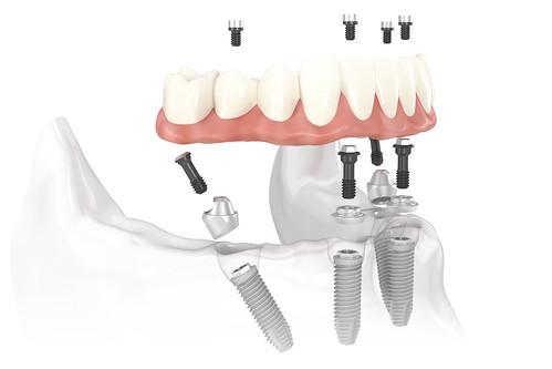 黃經理牙醫診所All on 4植牙 助老人恢復好「食」力 (1)