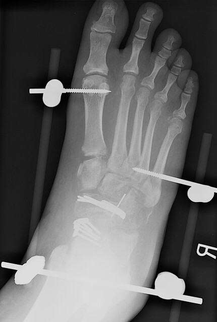 right foot w external fixation this is an x ray of my. Black Bedroom Furniture Sets. Home Design Ideas