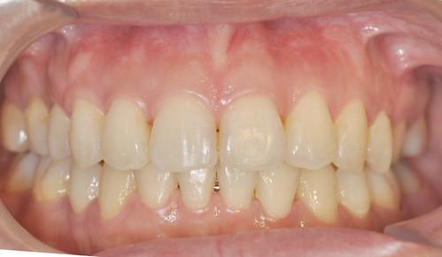 【三重蘆洲牙醫】結婚前不敢去牙齒矯正嗎?隱形矯正美觀沒有鋼牙的困擾 (14)