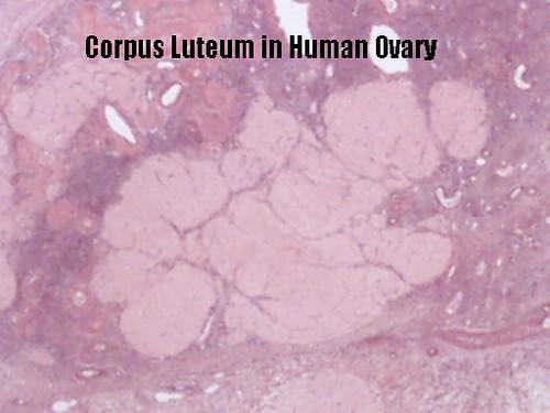 Ovary Slide Corpus Luteum