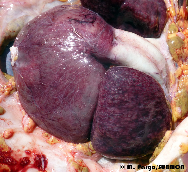 Heart with gaseous embolia