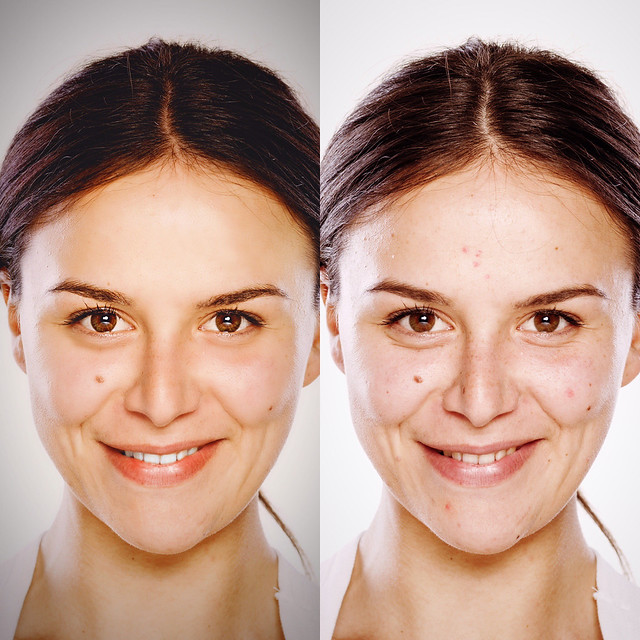 Relook before-after1