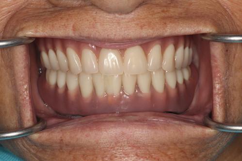 黃經理牙醫診所All on 4植牙 助老人恢復好「食」力 (6)