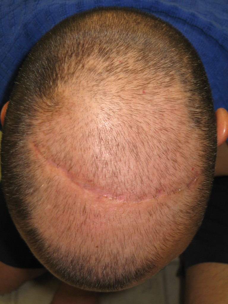 Image result for Hair Transplant flickr