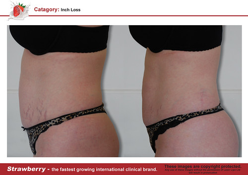 B4 & After female abdomen 8 lrg
