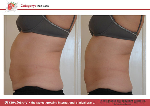 B4 & After female abdomen 15 lrg