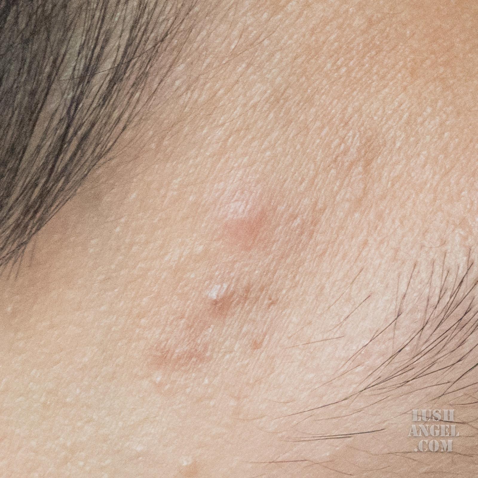 belo-pimple-skincare