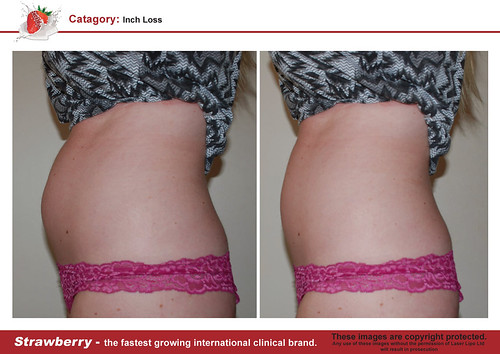 B4 & After female abdomen 19 lrg