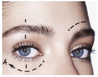 Oftalmología Antiaging con Thermage Eyes