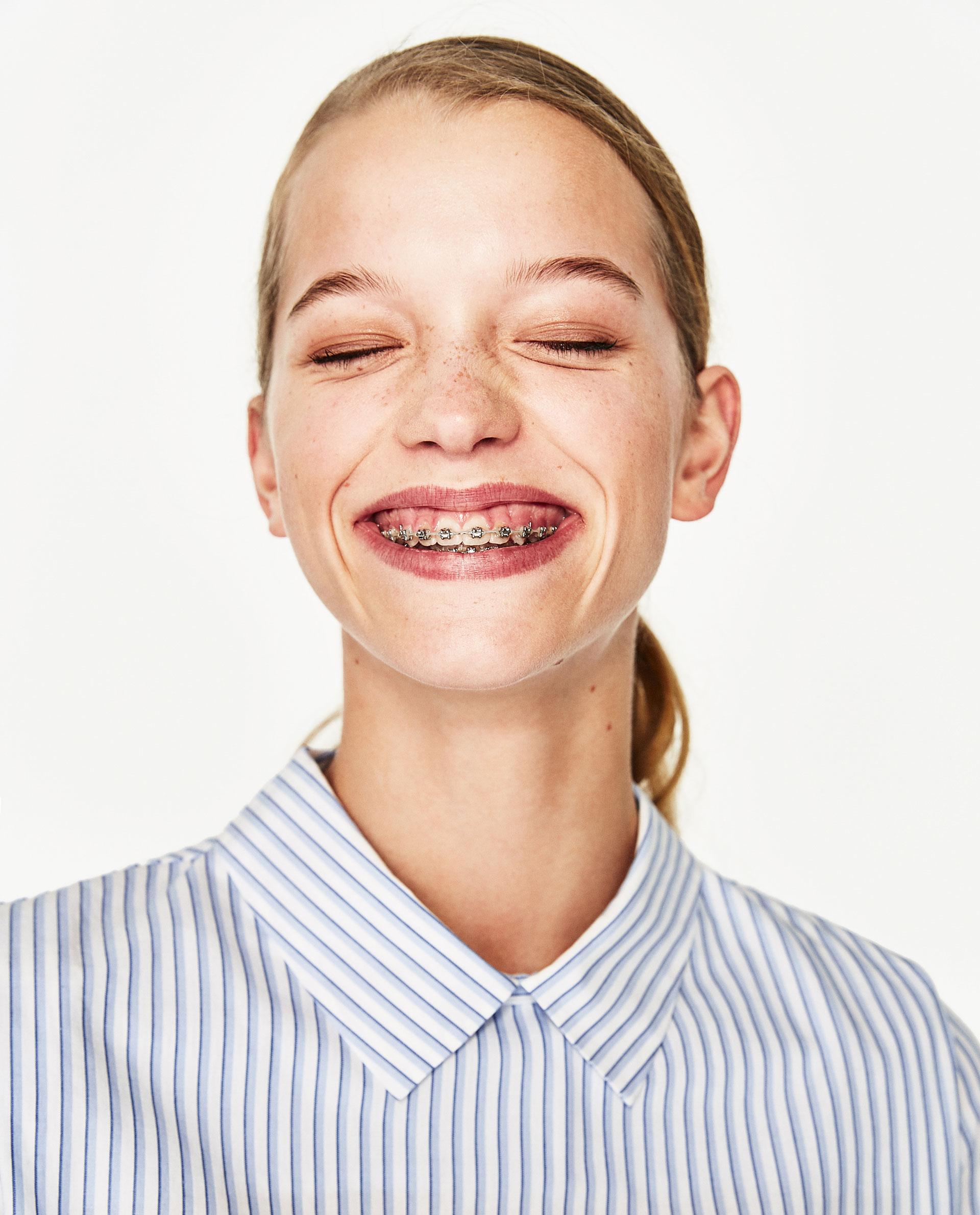 modelos zara ortodoncia