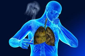 Obat Emfisema Herbal