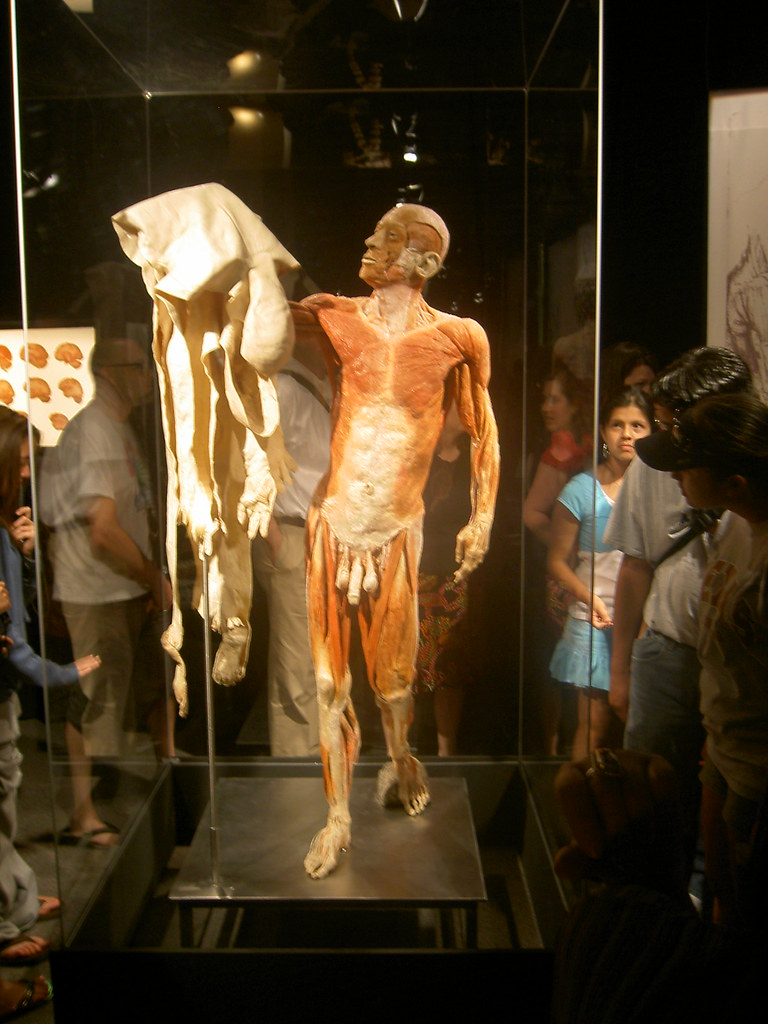 Flayed Man One Of The More Well Publicized Exhibits The