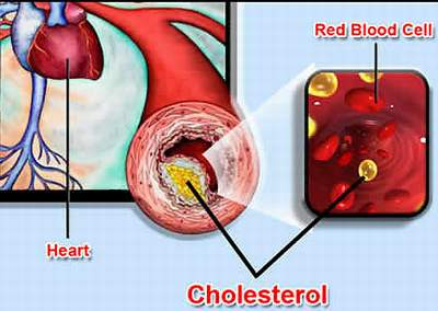 mỡ máu tim mạch