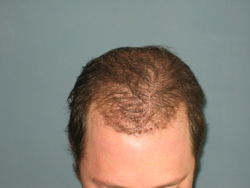 8 Days After Bosley Hair Restoration Procedure | by battleagainstbald