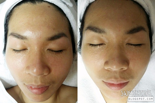 before and after indulgence beauty facial