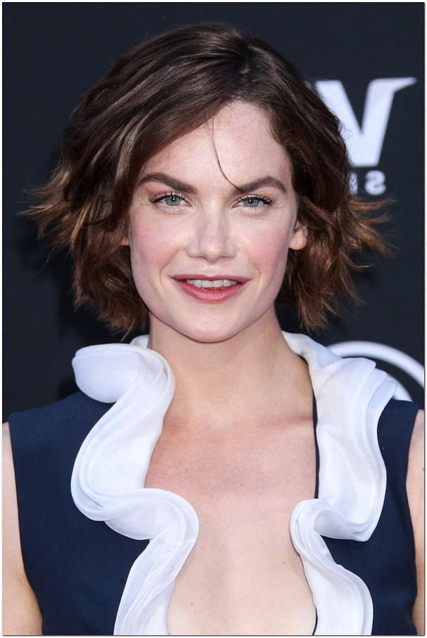 Ruth Wilson Plastic Surgery Lip Injection Taylor