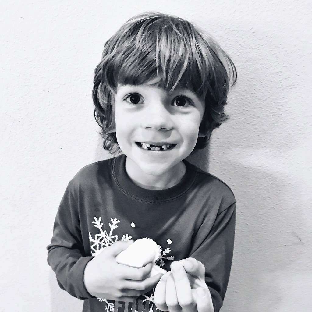 lost another tooth