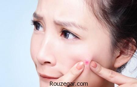 درمان جوش صورت نوجوانان