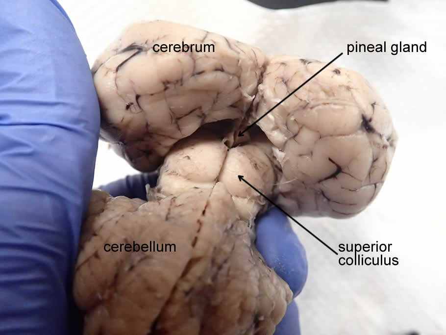 brain-pineal-posterior-labeled | Brain showing the colliculi… | Flickr