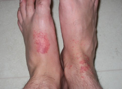 jellyfish stings as seen on my left foot and right ankle flickr