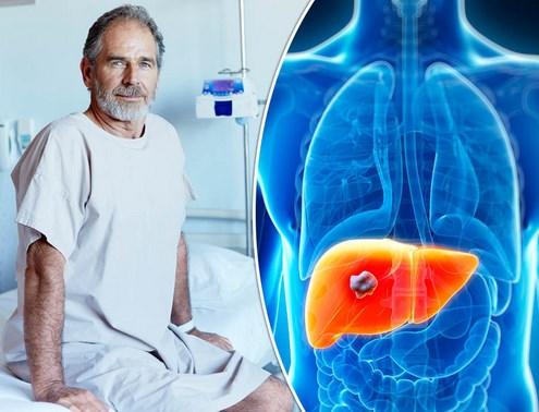 Gejala Dan Pencegahan Kanker Hati