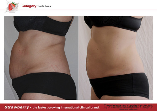B4 & After female abdomen 25 lrg