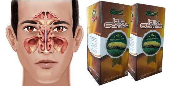 Testimoni Nyata Kesembuhan Penyakit Sinusitis