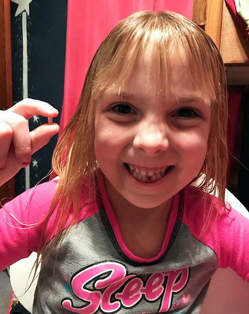 Phoebe lost her first tooth!