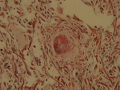 Schistosome mansoni