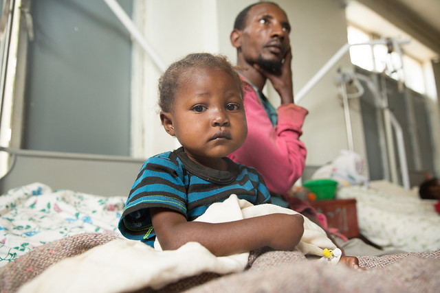 Two and a half years old Maritu Sultan is admitted at the stabilization center in Shebedino hospital to receive treatment for sever acute malnutrition and Edema.