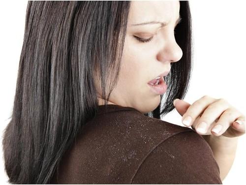 Дерматологи попереджають: лупою можна заразитися