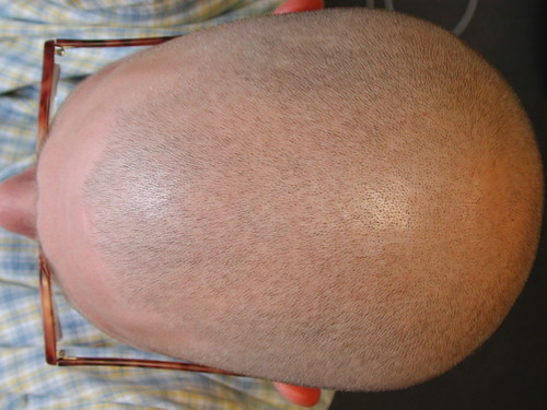 Best Scalp Treatment For Natural Hair