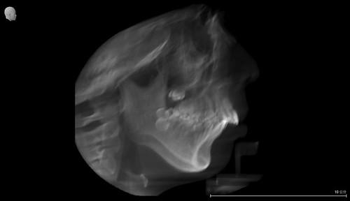 暴牙妹在精品牙醫透過牙齒矯正終於出頭天啦~ (2)