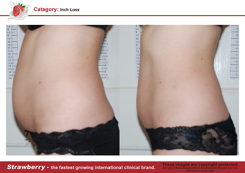 B4 & After female abdomen 27 lrg