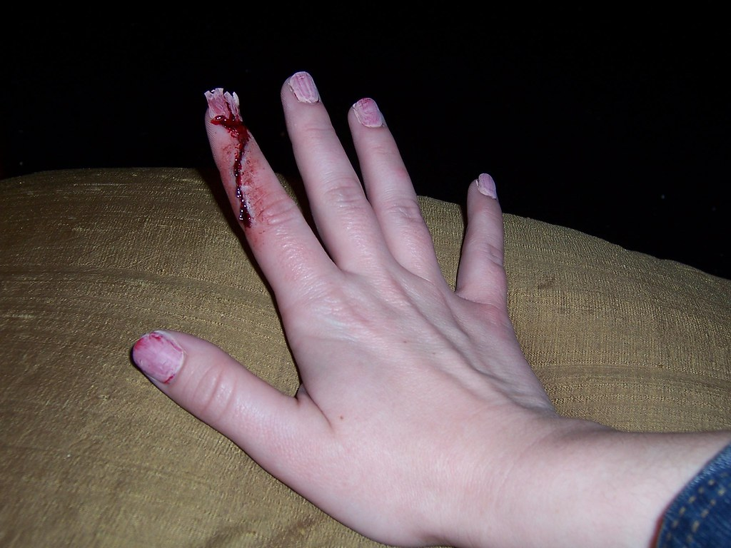 Smashed Fingernail with Cut | What a terrible accident! Car … | Flickr