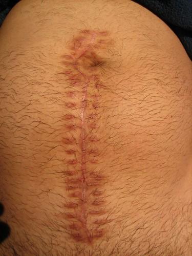 Ruptured Appendix - Mid-line Incision Scar | Almost 3 ...