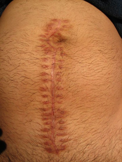 Ruptured Appendix - Mid-line Incision Scar | Almost 3 ...